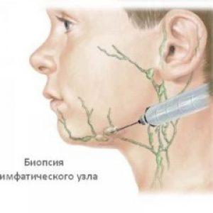 биопсия лимфатических узлов