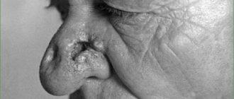 поражение носа