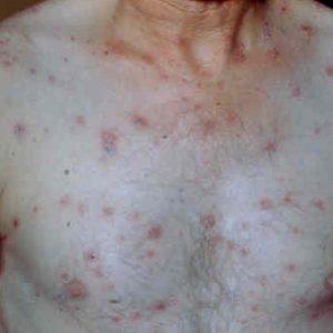 Как долго лечится сифилис