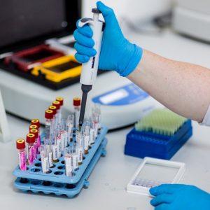 выявление антител