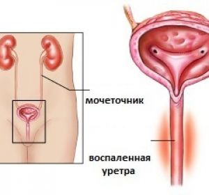воспаленная уретра