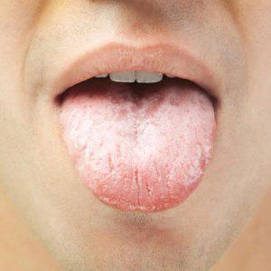 поражение языка